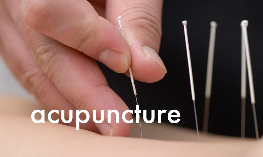 Melbourne Road Health Group - Acupuncture